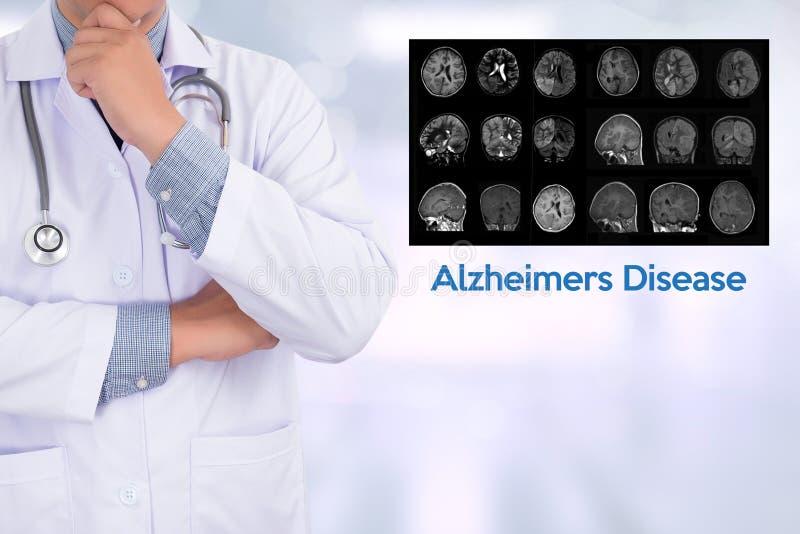 Concetto di malattia di Alzheimers, malattie degeneranti Parkin del cervello fotografia stock libera da diritti