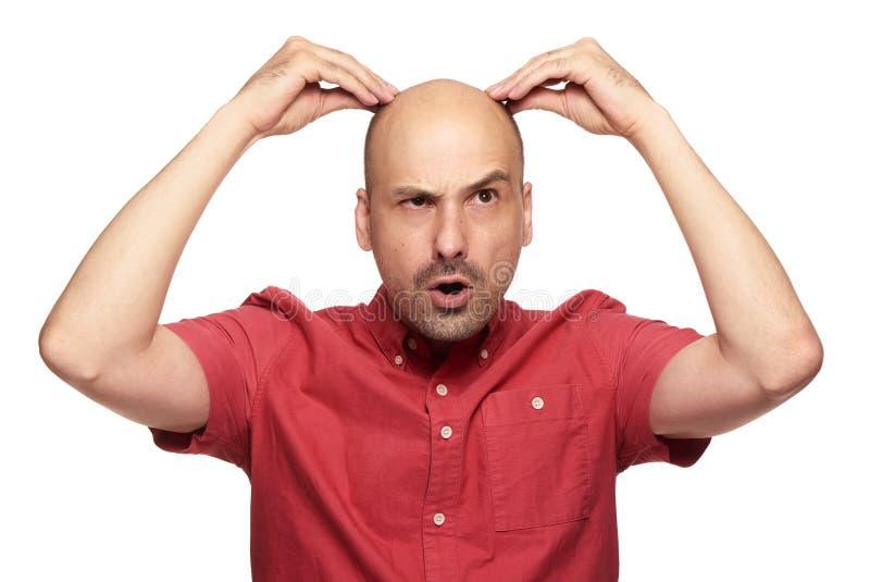 Concetto di perdita di capelli dell'uomo fotografia stock