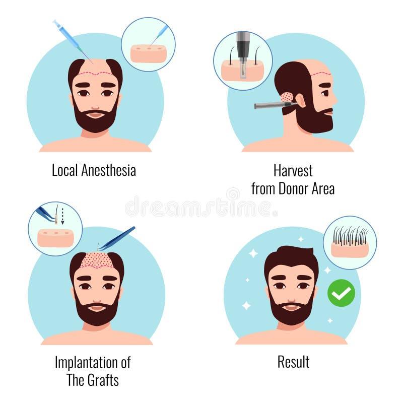 Concetto di progetto di trapianto dei capelli illustrazione vettoriale