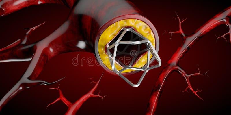 Concetto medico dell'impianto di stent come illustrazione di simbolo 3D di trattamento della malattia cardiaca illustrazione di stock
