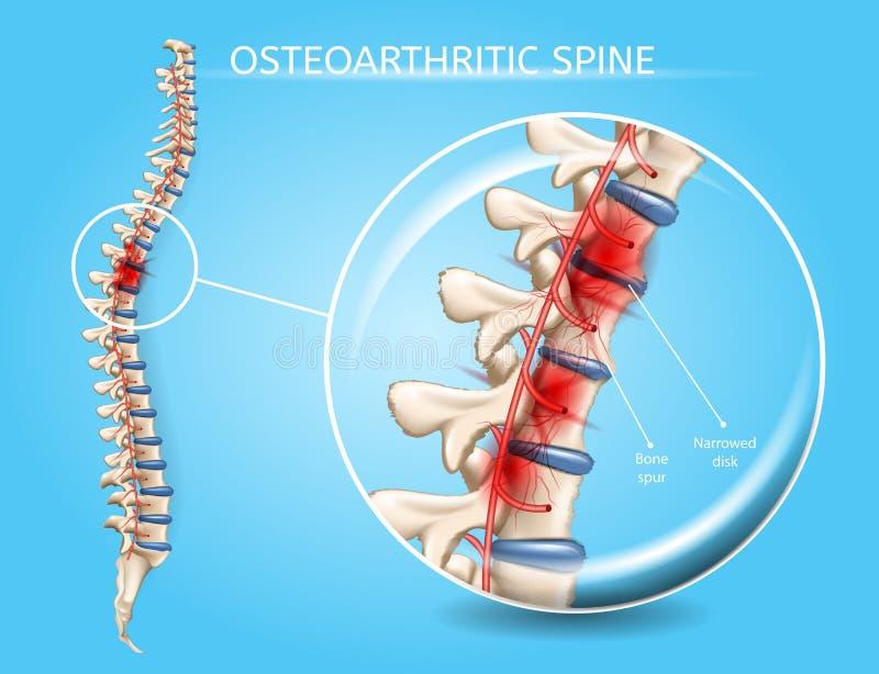 Concetto realistico di vettore di osteoartrite spinale royalty illustrazione gratis