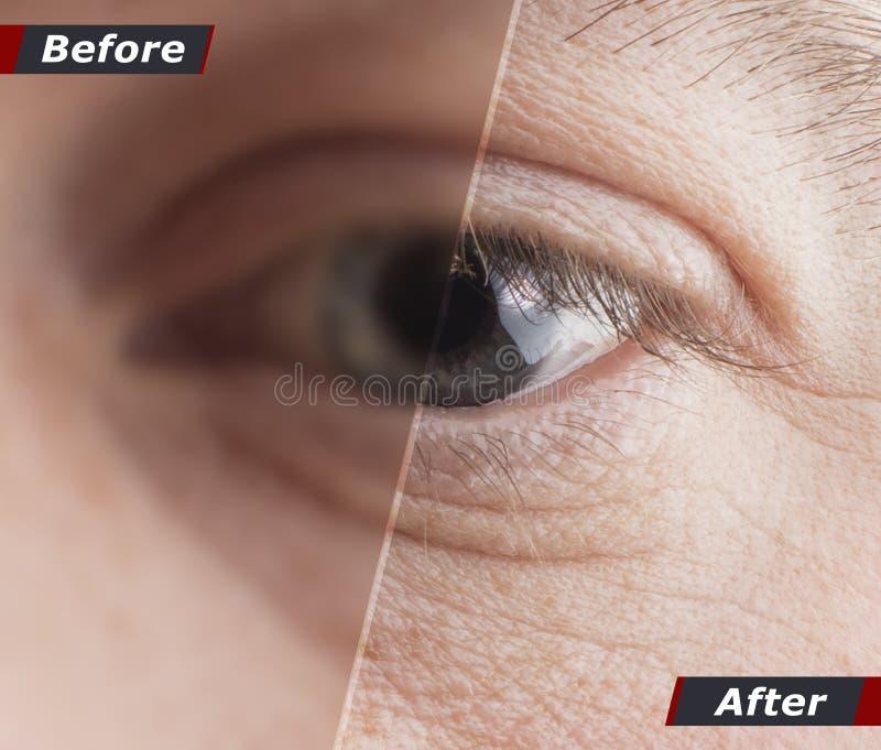 Concetto tecnologico, un recupero di cento per cento di visione Lenti a contatto Buona visione Prima e dopo fotografia stock