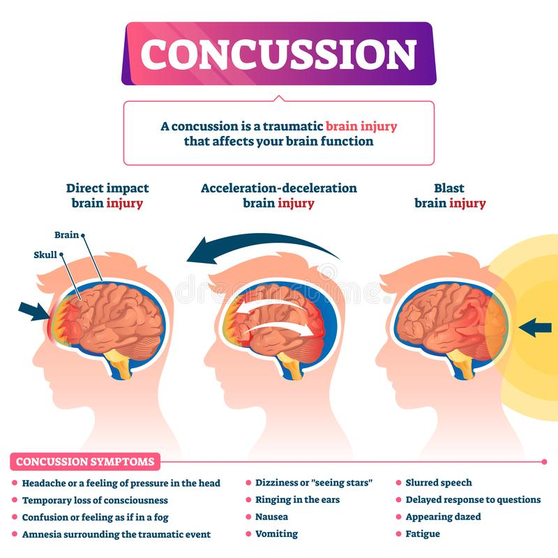 Free Concussion Vector Illustration. Labeled Educational Post Head Trauma Scheme Royalty Free Stock Image - 156638716