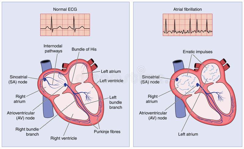 Conducción eléctrica del corazón normal y fibrilación atrial ilustración del vector