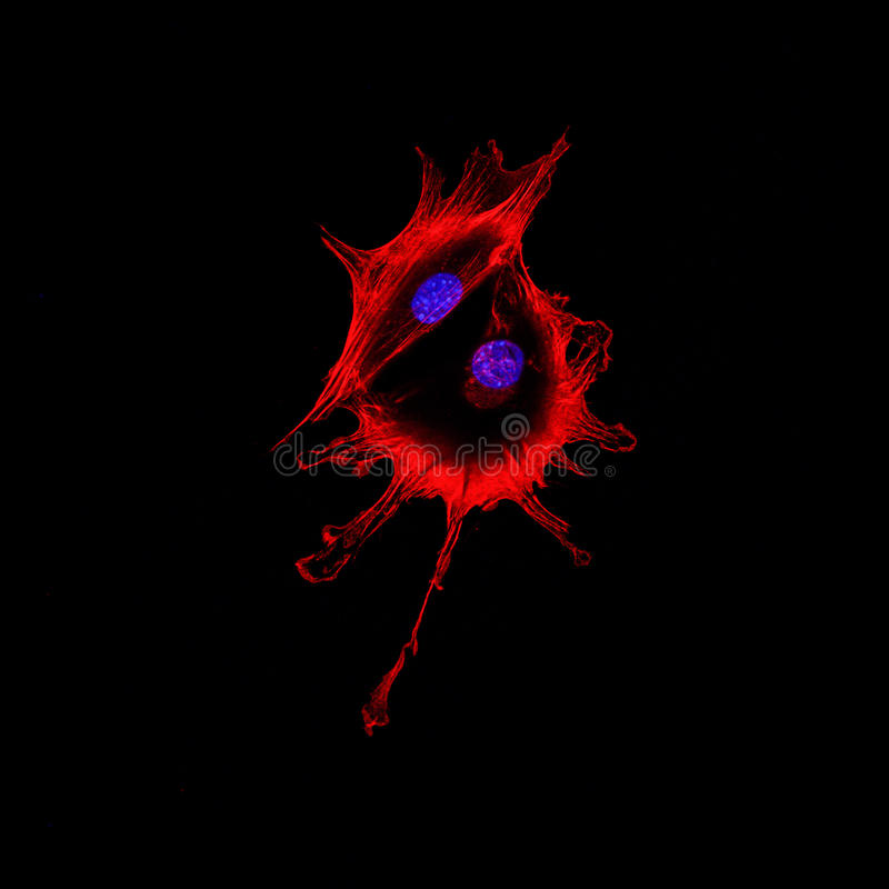Confocal microscopy imaging of two cancer cells touching each ot. Her. Cytoskeletal protein actin in red, nucleus in blue stock photo