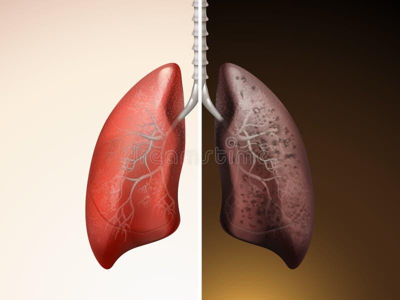 Confronto di cura del polmone illustrazione di stock