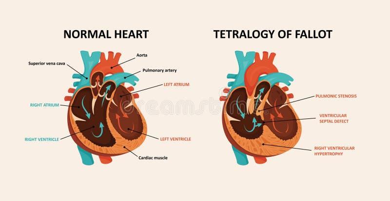Congenital disease of the heart royalty free illustration