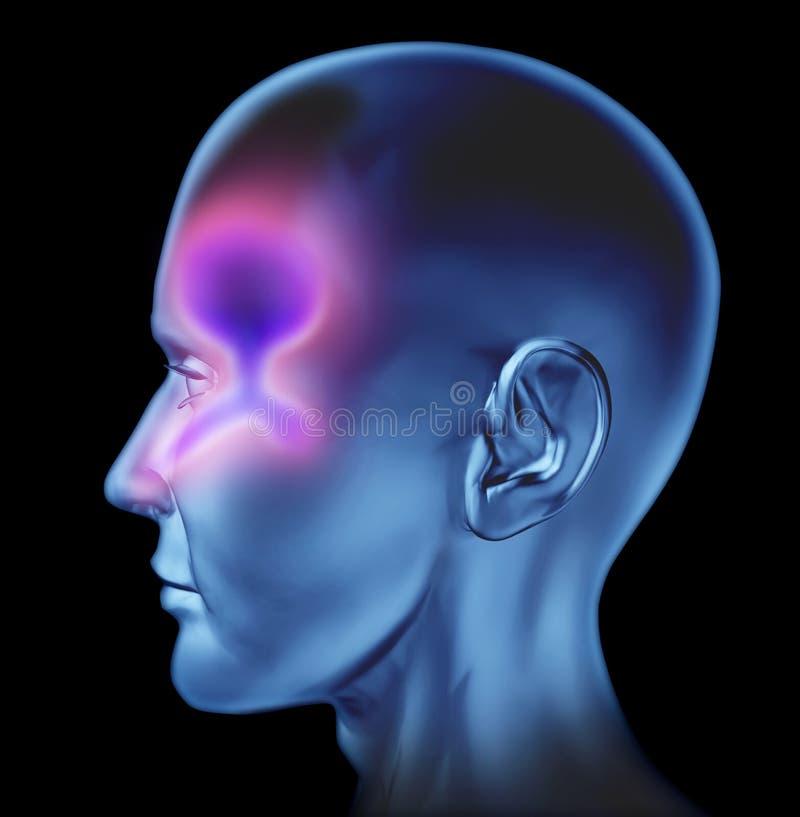 Congestión nasal humana libre illustration