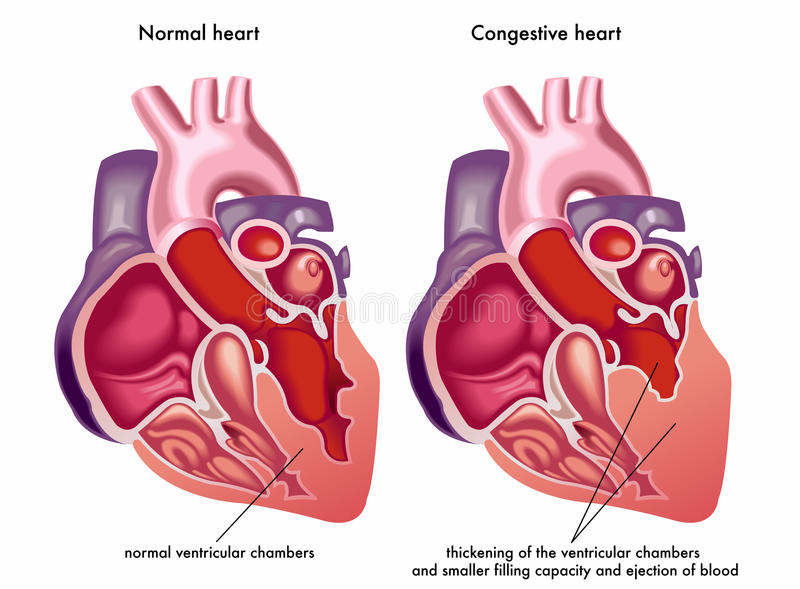 Congestive heart. Medical illustration of the symptoms and consequences of congestive heart stock illustration