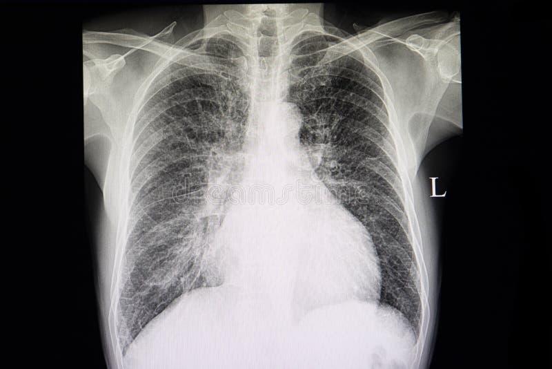 Congestive Herzversagen lizenzfreie stockbilder