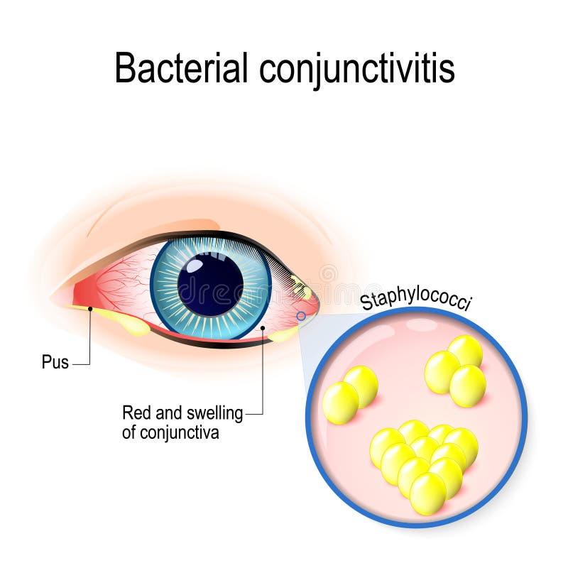 Congiuntivite batterica royalty illustrazione gratis