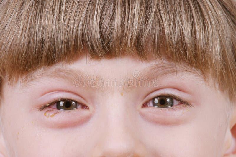 Conjonctivite - yeux allergiques mauvais image libre de droits