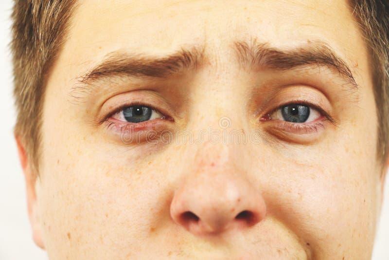Conjonctivite, yeux fatigués, yeux rouges, maladie oculaire photos libres de droits