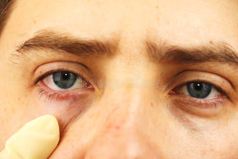 Conjonctivite, yeux fatigués, yeux rouges, maladie oculaire photographie stock libre de droits