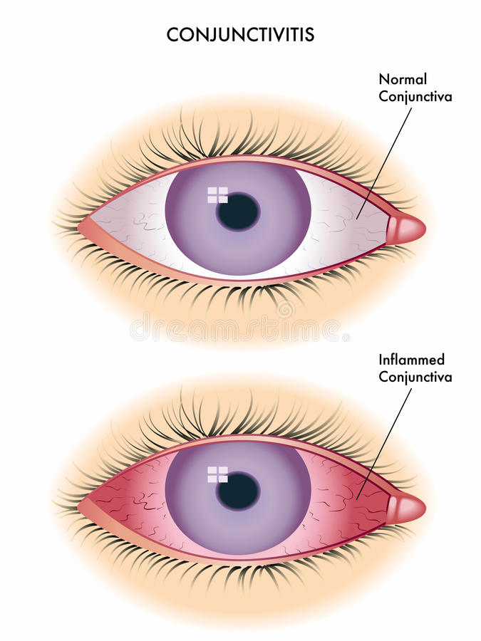 Conjunctivitis. Medical illustration of the effects of conjunctivitis royalty free illustration