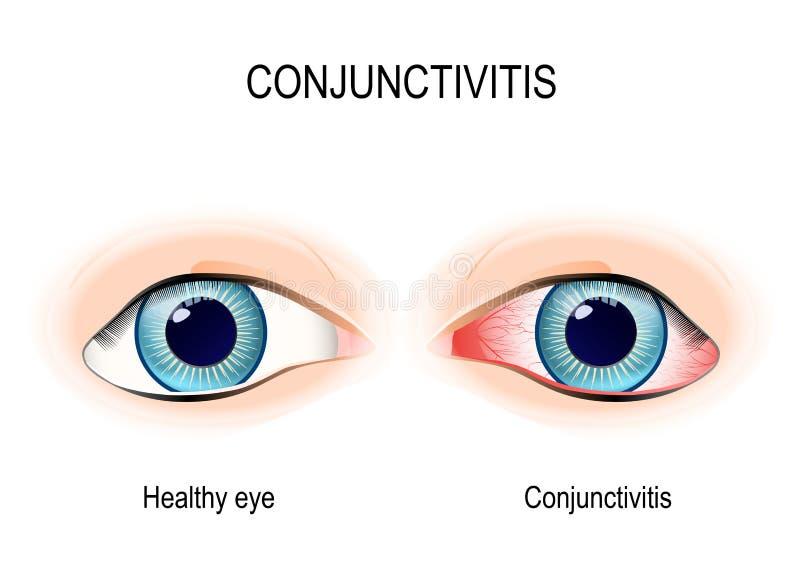 conjunctivitis ilustração royalty free