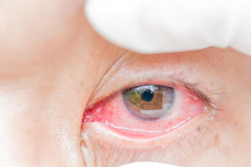 Conjunctivitis and inflammation in the eyes. royalty free stock images