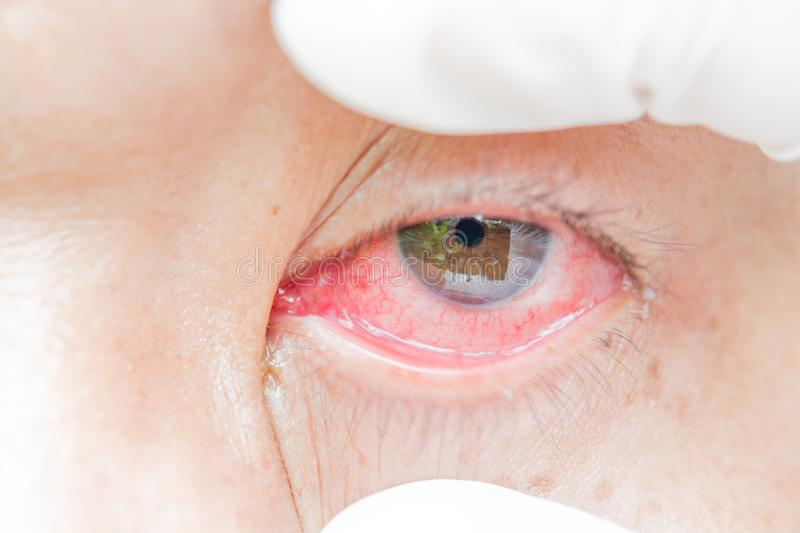 Conjunctivitis and inflammation in the eyes royalty free stock photo