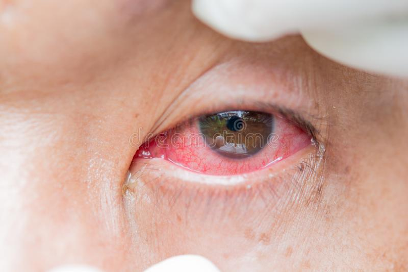 Conjunctivitis and inflammation in the eyes stock photos