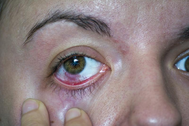 Conjunctivitis or pink eye royalty free stock images