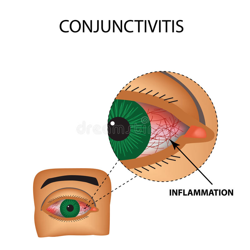 Conjunctivitis. Redness and inflammation of the eye. Vessels in the eye. Infographics. Vector illustration on isolated background vector illustration