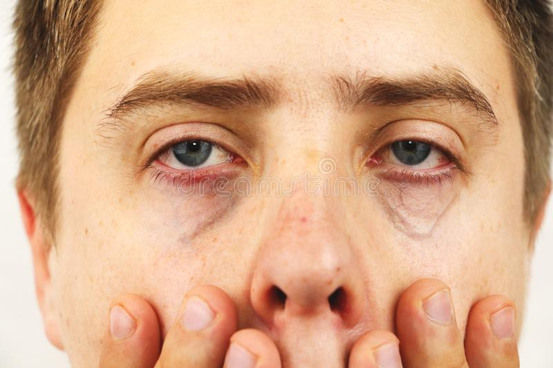 Conjunctivitis, tired eyes, red eyes, eye disease royalty free stock photography