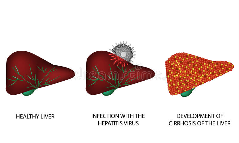 Consequences of hepatitis. Cirrhosis of the liver. World Hepatitis Day. July 28th. Infographics. Vector illustration. On isolated background stock illustration