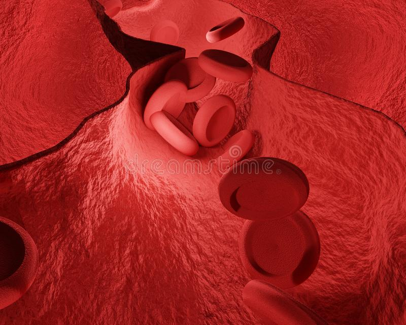 Constricted blood vessels coronary heart disease 3d rendering. Design royalty free illustration