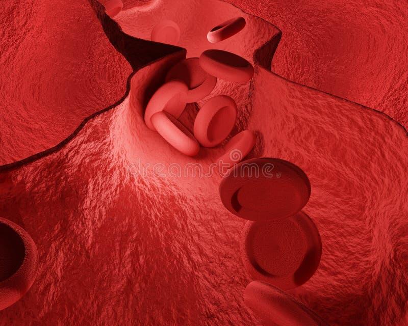 Constricted naczynie krwionośne kierowej choroby 3d wieńcowy rendering royalty ilustracja