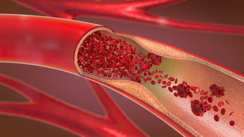 Constricted and narrowed artery and the blood cannot flow properly called arteriosclerosis. 3d illustration of a constricted and narrowed artery and the blood vector illustration
