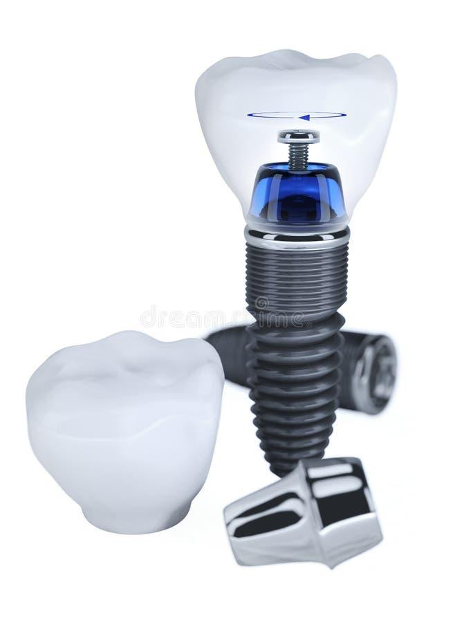 Construção do implante dental fotos de stock