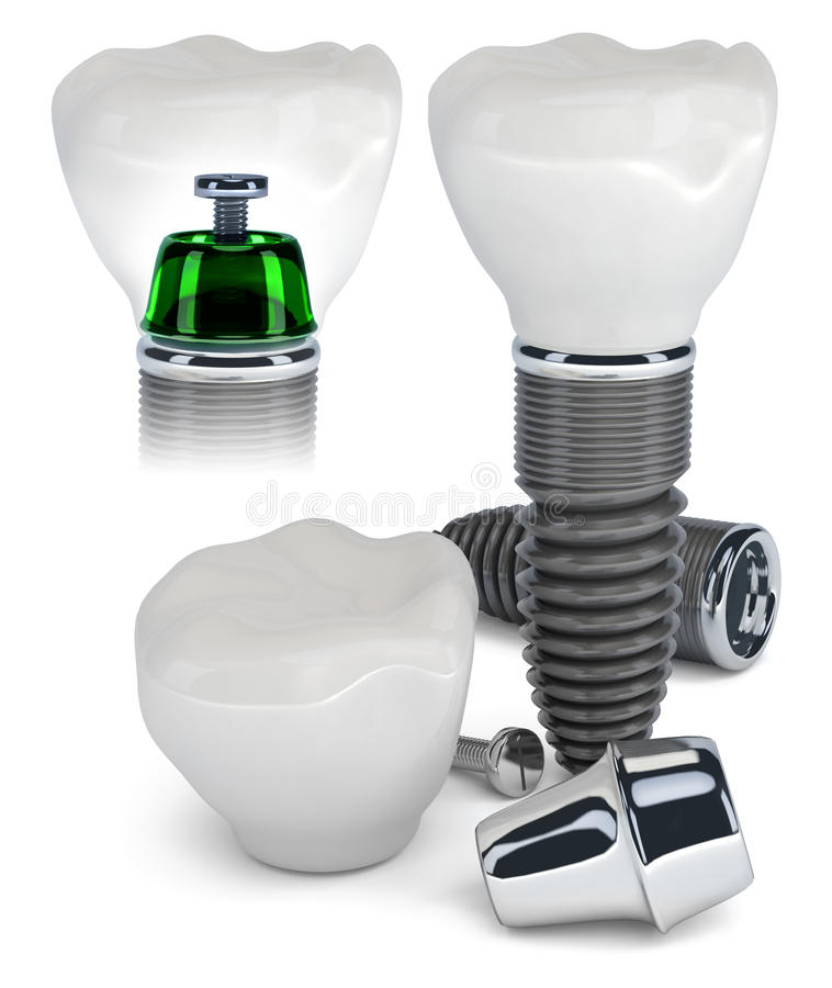 Construção do implante dental ilustração stock