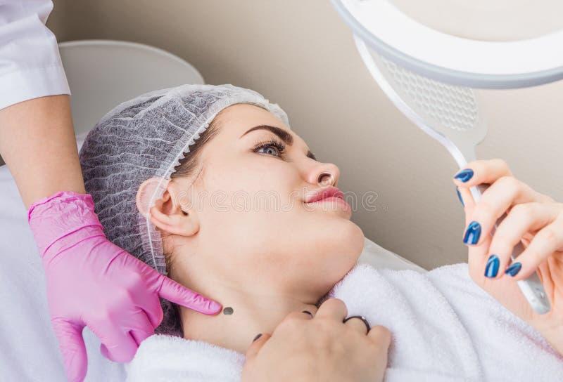 Consultation sur le retrait du papillome dans une clinique de cosmétologie image libre de droits