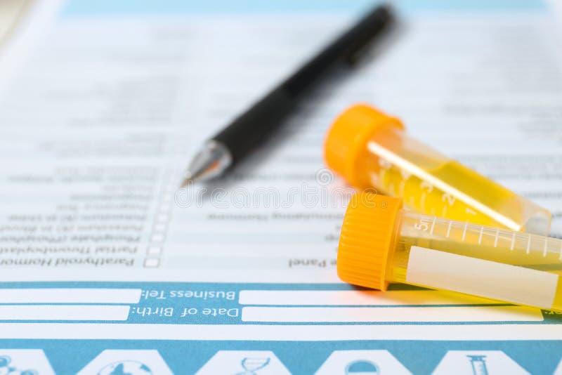 Containers met urinesteekproeven voor analyse van medisch rapport, close-up royalty-vrije stock foto