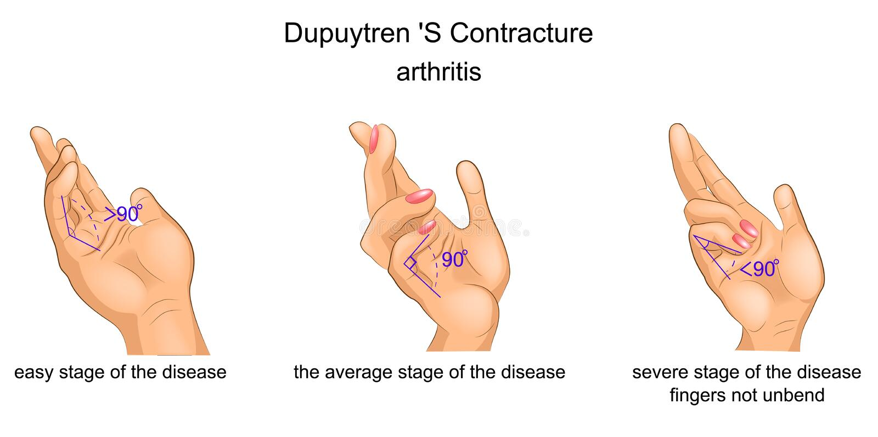 Contractura aponeurozy palmaris ilustracja wektor