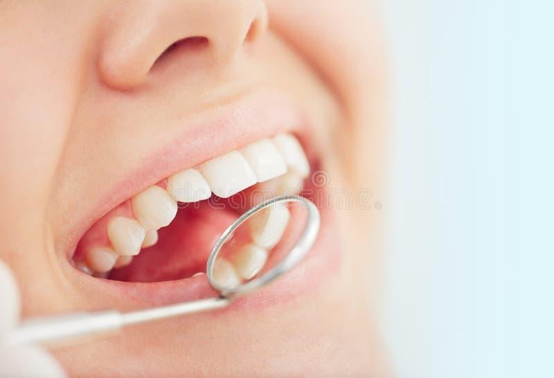 Controle dental foto de stock royalty free