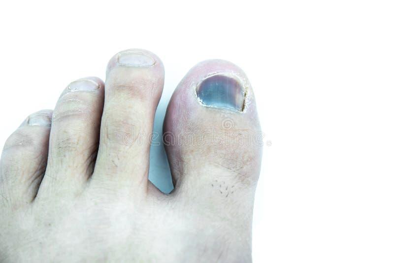 Contusion sur le clou d'orteil sur le fond blanc image stock