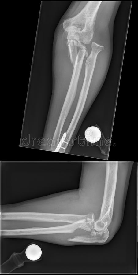 Conventional x-rax of bone fracture royalty free stock images