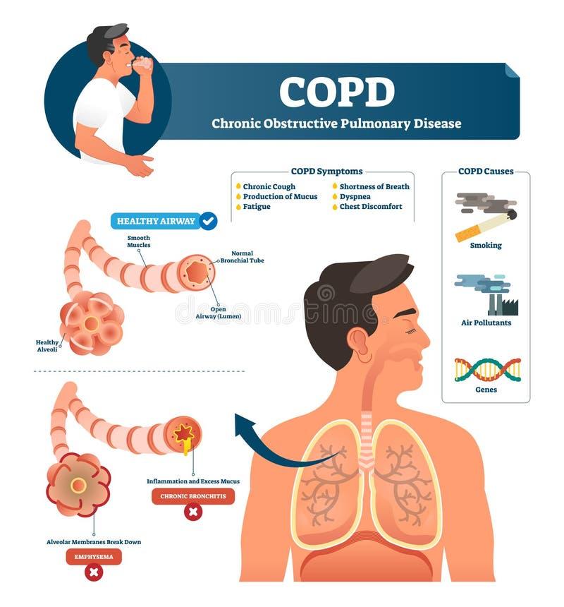 COPD-vektorillustration Märkt kronisk hindrande lung- förklaring vektor illustrationer