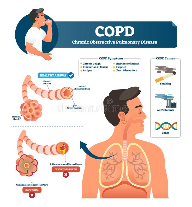 COPD wektoru ilustracja Przylepiający etykietkę chroniczny obstrukcyjny płucny wyjaśnienie ilustracja wektor