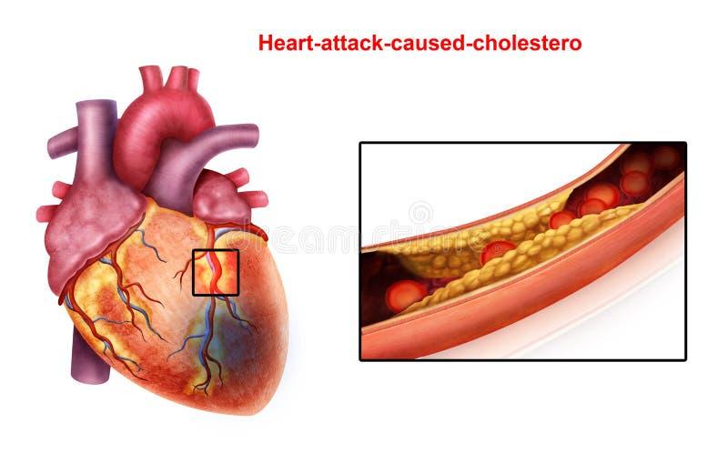 Coração-ataque ilustração do vetor
