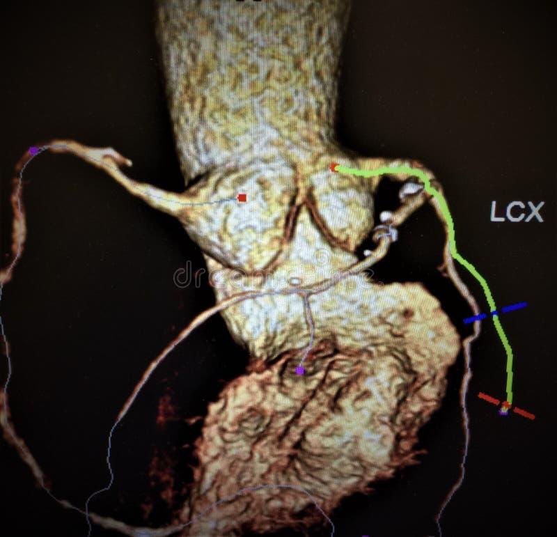 Coração atherosclerotic das embarcações das mudanças da angiografia foto de stock