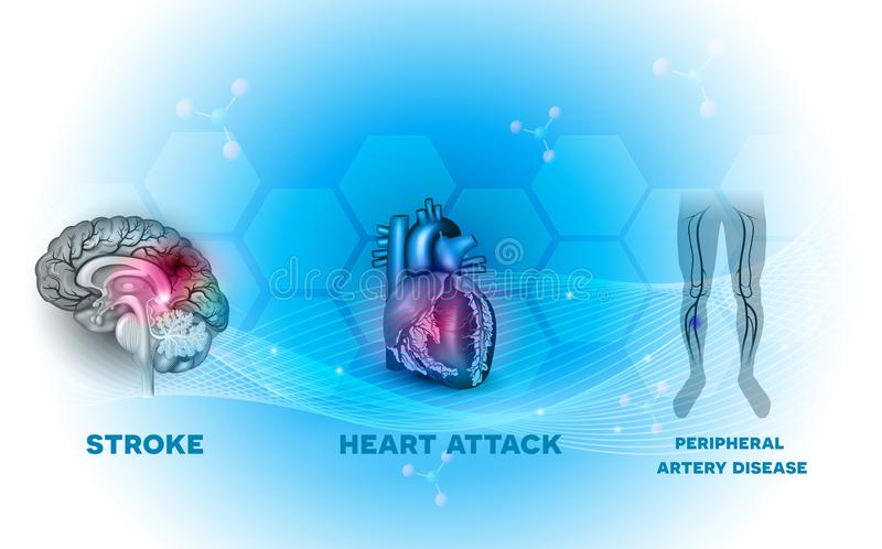 Coração e doenças do vaso sanguíneo ilustração stock