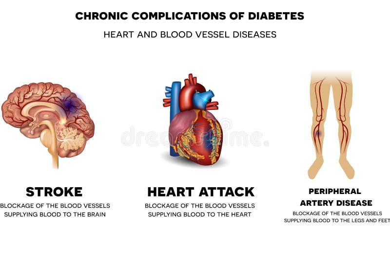 Coração e doenças do vaso sanguíneo ilustração royalty free
