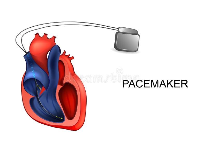 Coração e pacemaker cardiology ilustração royalty free