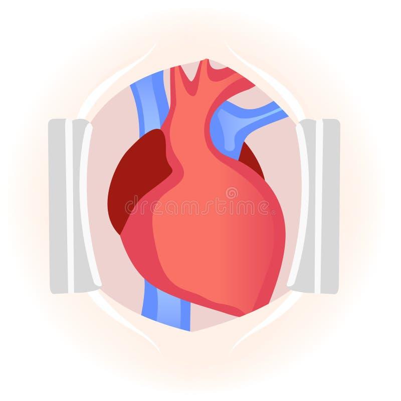 Coração humano durante a cirurgia Circulatio do sangue venoso e arterial ilustração do vetor
