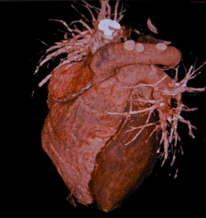 Corazón humano, tomografía computada, CT, radiología imagen de archivo libre de regalías