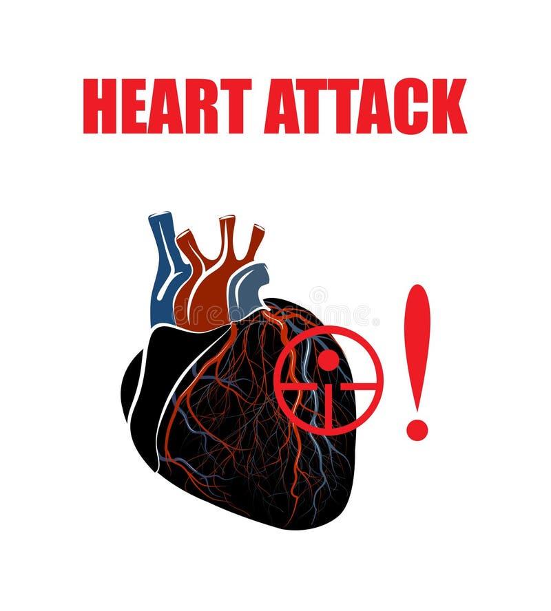 Corazón Infarto del miocardio ilustración del vector