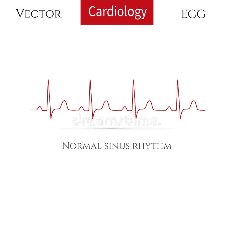 Corazón normal rhythm( sino normal rhythm) ilustración del vector