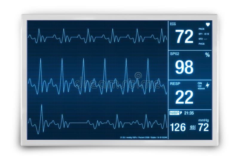 Corazón Rate Monitoring Device libre illustration